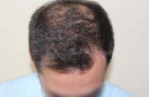 hair-transplant-2000-grafts (13)