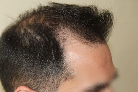 hair-transplant-2000-grafts (14)