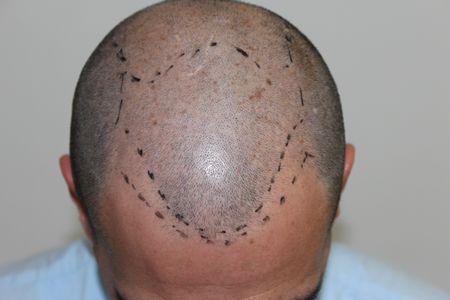 hair-transplant-2000-grafts (15)