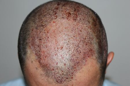 hair-transplant-2000-grafts (18)