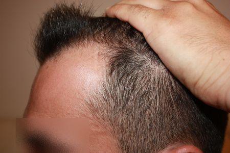 hair-transplant-2000-grafts (2)