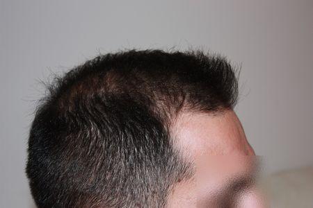 hair-transplant-2000-grafts (20)