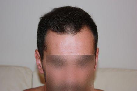 hair-transplant-2000-grafts (4)