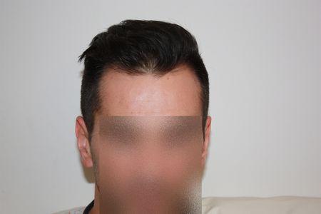 hair-transplant-2000-grafts (8)