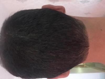 hair-transplant-3000-grafts (1)
