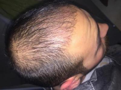 hair-transplant-3000-grafts (10)
