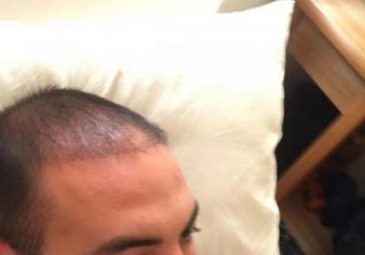 hair-transplant-3000-grafts (11)