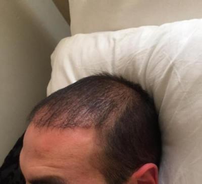 hair-transplant-3000-grafts (12)