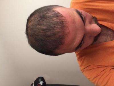 hair-transplant-3000-grafts (16)