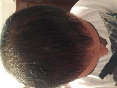 hair-transplant-3000-grafts (17)