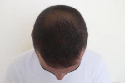 hair-transplant-3000-grafts (20)