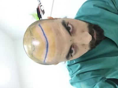 hair-transplant-3000-grafts (4)