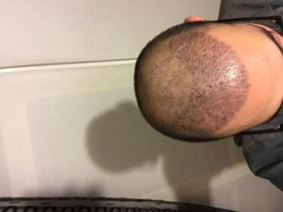hair-transplant-3000-grafts (5)