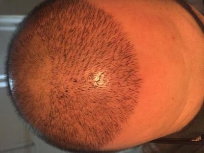 hair-transplant-3000-grafts (7)