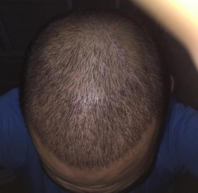 hair-transplant-3000-grafts (8)