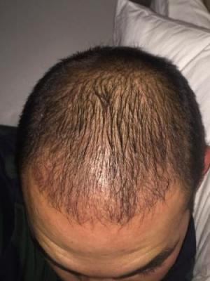 hair-transplant-3000-grafts (9)