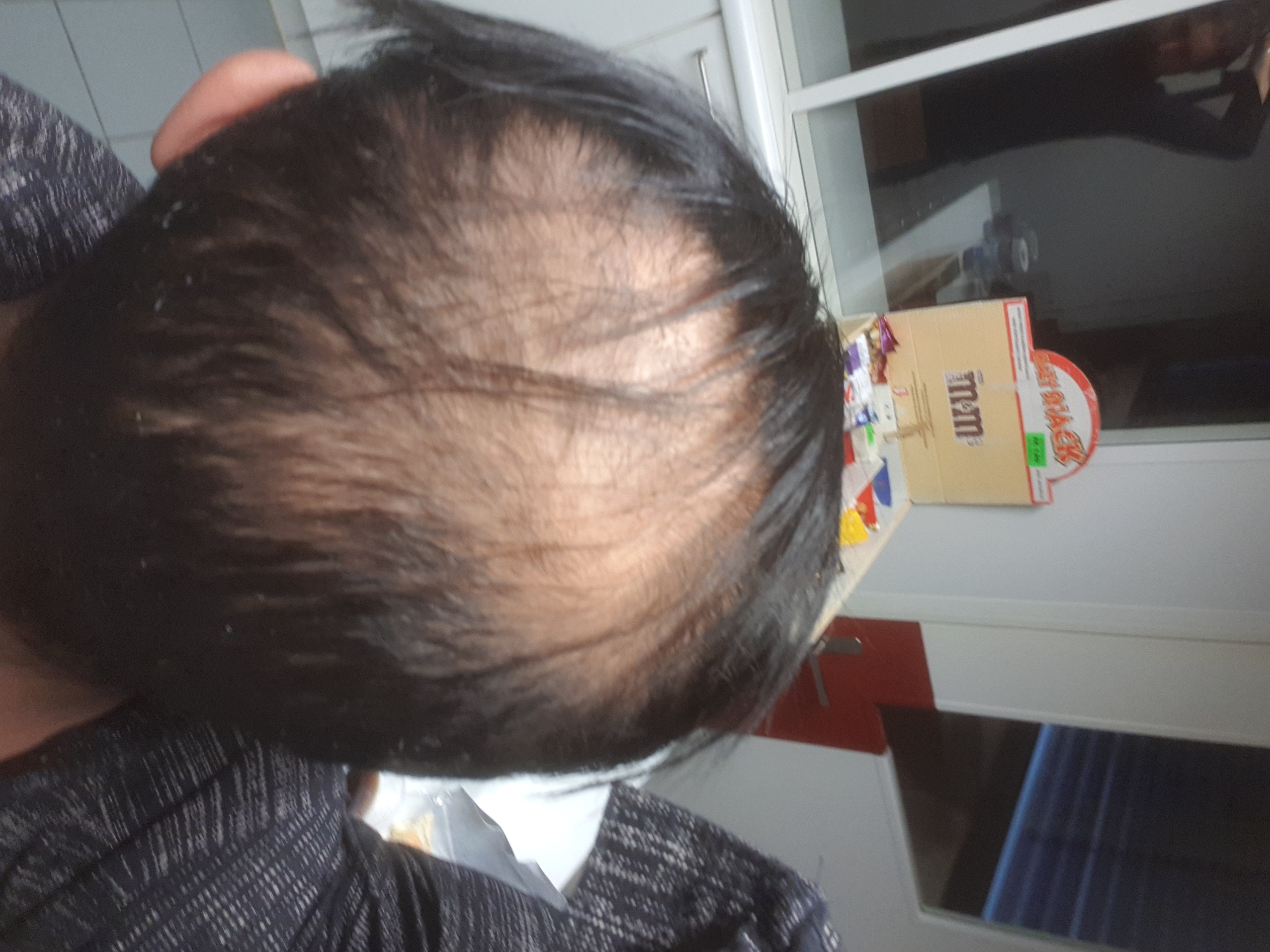 hair-transplant-best-surgeon-in-turkey (3)