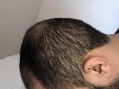 hair-transplant-best-surgeon-in-turkey (5)