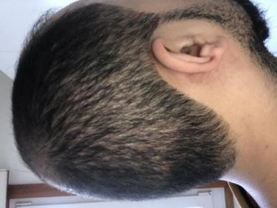 hair-transplant-best-surgeon-in-turkey (6)