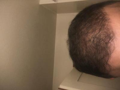 hair-transplant-best-surgeon-in-turkey (7)