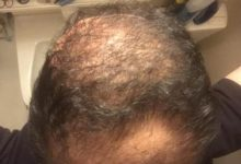 hair-transplant-best-surgeon-in-turkey (8)