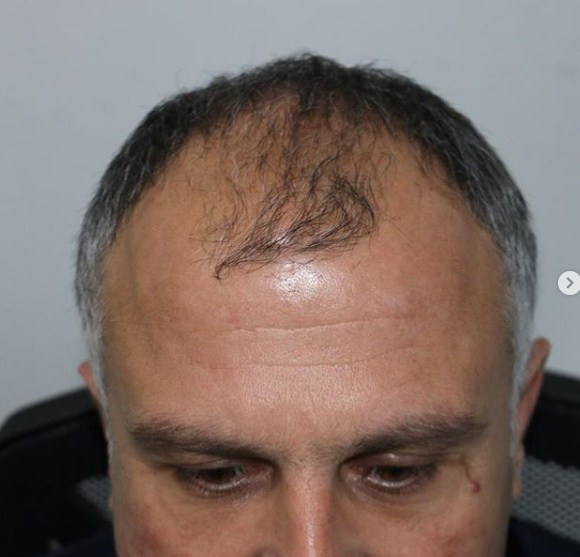hair-transplant-clinic-turkey (4)