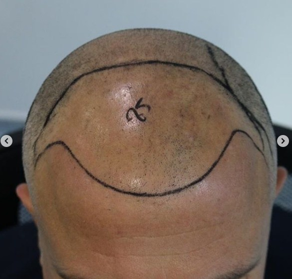 hair-transplant-clinic-turkey (5)