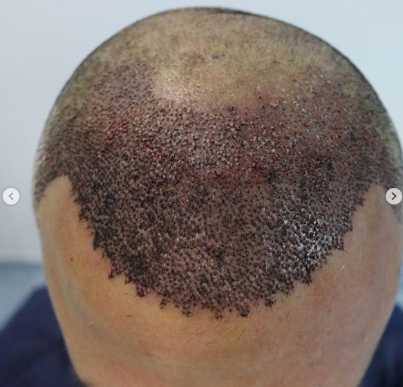 hair-transplant-clinic-turkey (7)