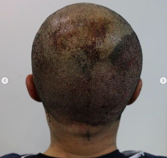 hair-transplant-clinic-turkey (8)
