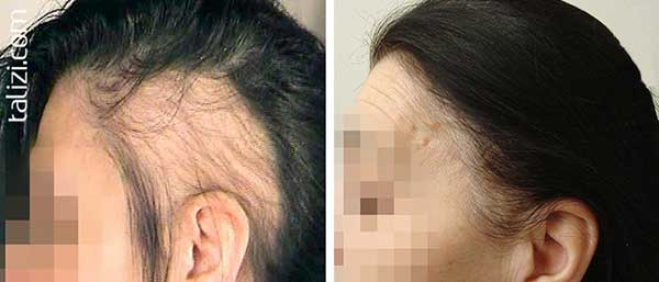 hair-transplant-in-girl