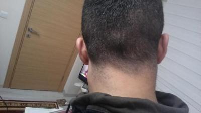 hair-transplant-in-istanbul (10)