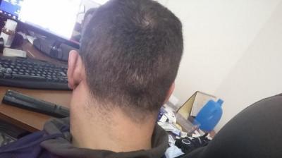 hair-transplant-in-istanbul (11)