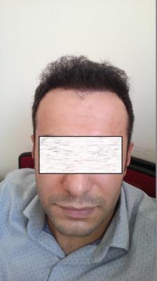 hair-transplant-in-istanbul (12)