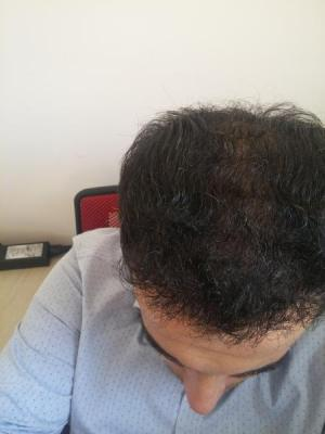 hair-transplant-in-istanbul (13)