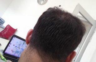 hair-transplant-in-istanbul (14)