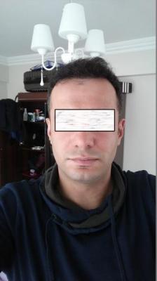 hair-transplant-in-istanbul (16)
