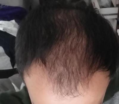 hair-transplant-in-istanbul (2)