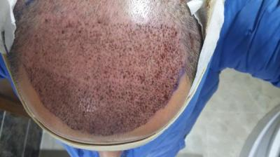 hair-transplant-in-istanbul (3)