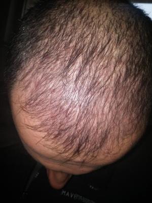 hair-transplant-in-istanbul (5)