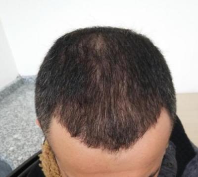 hair-transplant-in-istanbul (6)