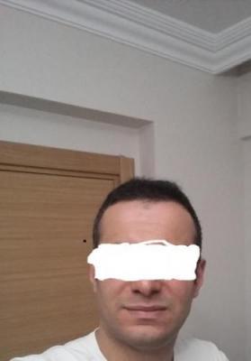 hair-transplant-in-istanbul (7)