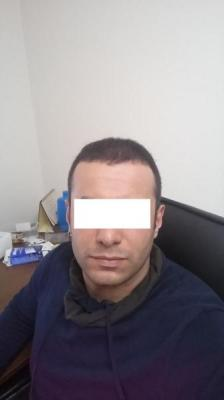 hair-transplant-in-istanbul (9)
