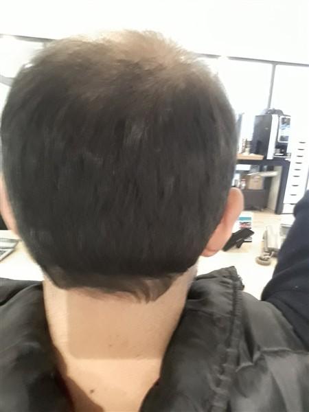 hair-transplant-in-turkey-istanbul (1)
