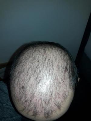 hair-transplant-in-turkey-istanbul (11)