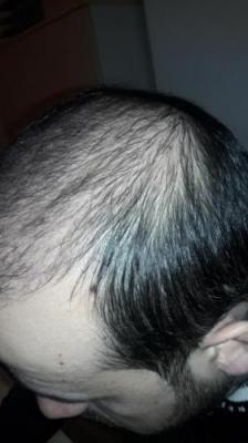 hair-transplant-in-turkey-istanbul (13)