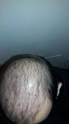hair-transplant-in-turkey-istanbul (14)