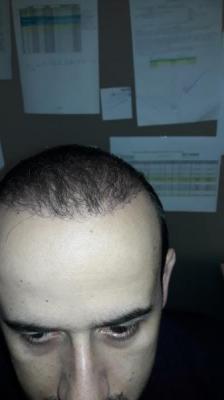 hair-transplant-in-turkey-istanbul (17)