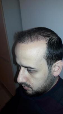 hair-transplant-in-turkey-istanbul (18)