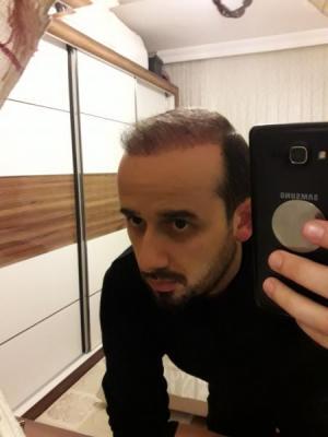 hair-transplant-in-turkey-istanbul (19)