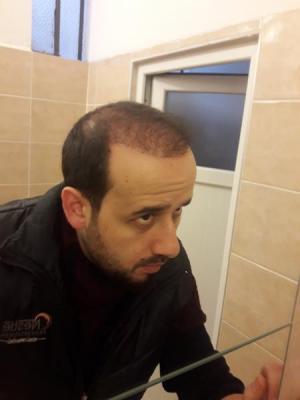 hair-transplant-in-turkey-istanbul (20)